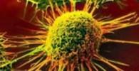 چند قدم از سرطان فاصله بگیرید