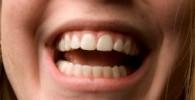 اقدامات بهداشتی و پیشگیری از مشکلات دهانی دندانی