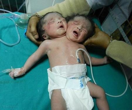 تصاویر کودک دو سر در هند