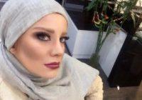 پشیمانی بازیگران زن از جراحی زیبایی بینی